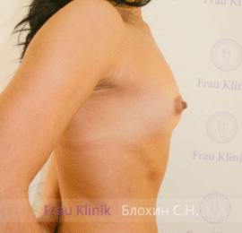 Увеличение груди 42