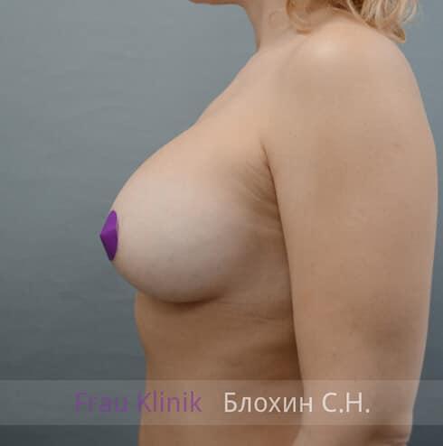 Повторная маммопластика 23