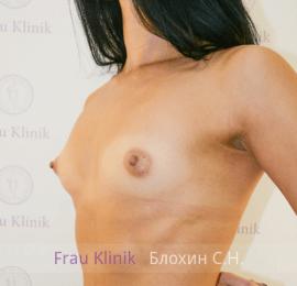 Увеличение груди 36