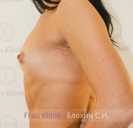 Увеличение груди 52