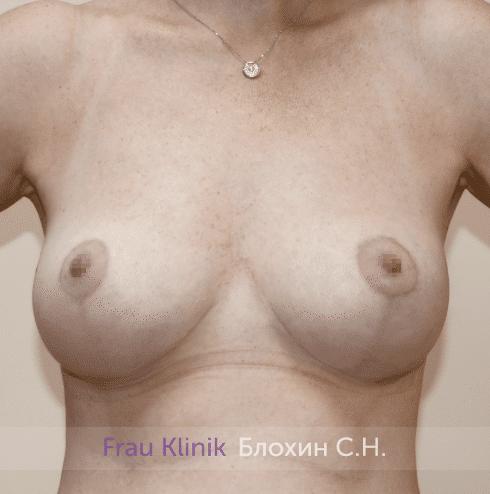 Уменьшение груди 68