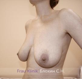 Уменьшение груди 65