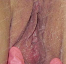 Лабиопластика 12