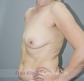 Реконструкция груди 7