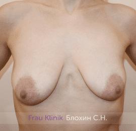 Подтяжка груди 36