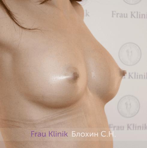 Увеличение груди 201