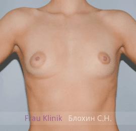 Увеличение груди 66