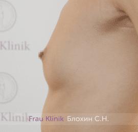 Увеличение груди 214
