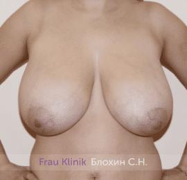 Уменьшение груди 77