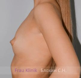 Увеличение груди 62