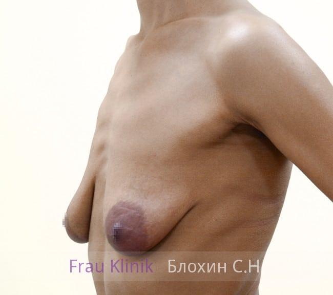 Подтяжка груди с увеличением 45