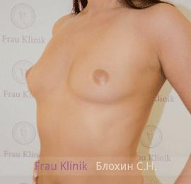 Увеличение груди 74