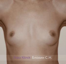Увеличение груди 226
