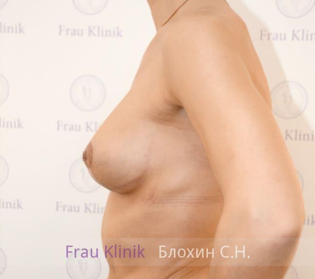 Подтяжка груди с увеличением 48