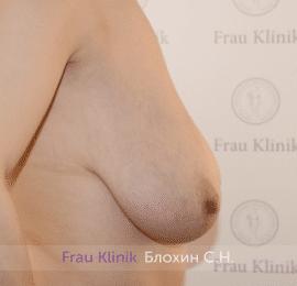 Уменьшение груди 89