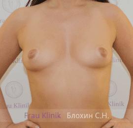 Увеличение груди 58