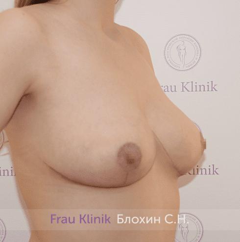 Уменьшение груди 88