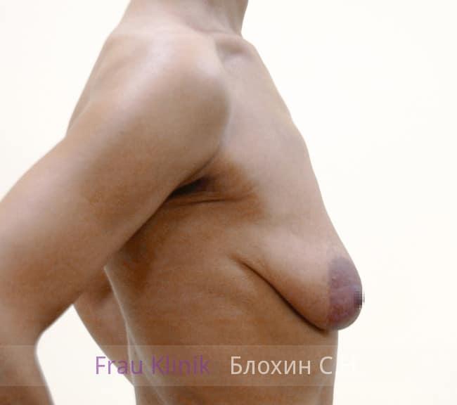 Подтяжка груди с увеличением 53