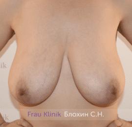 Уменьшение груди 85