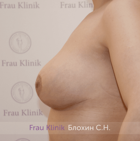 Уменьшение груди 84