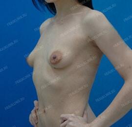 Коррекция тубулярной груди 7