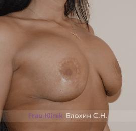 Повторная маммопластика 36