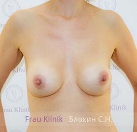 Повторная маммопластика 6