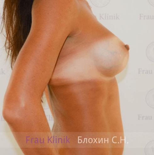 Увеличение груди 73