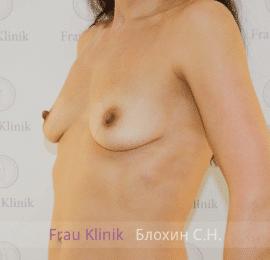 Увеличение груди 84