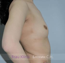 Увеличение груди 100