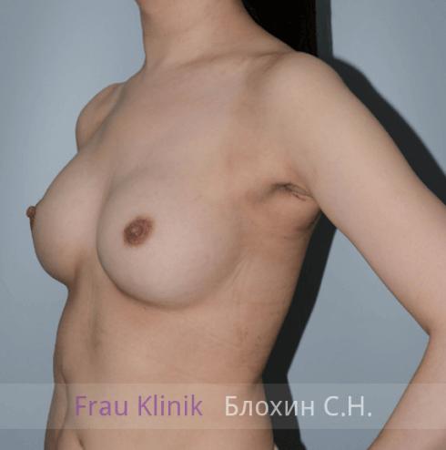 Увеличение груди 95