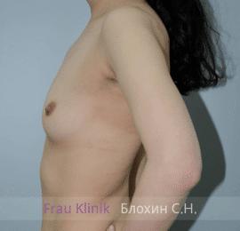 Увеличение груди 92