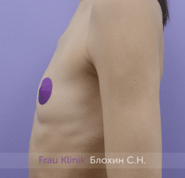 Увеличение груди 178