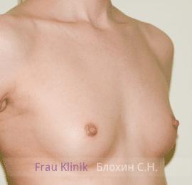 Увеличение груди 90