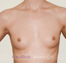 Увеличение груди 88