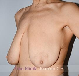 Уменьшение груди 15