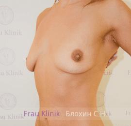 Увеличение груди 122