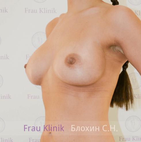 Увеличение груди 105