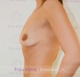 Увеличение груди 102