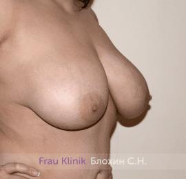 Подтяжка груди 44