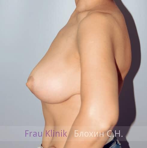 Уменьшение груди 14