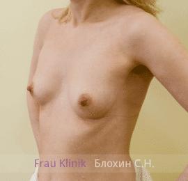 Увеличение груди 114