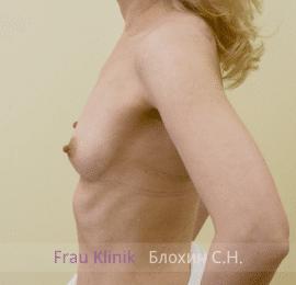 Увеличение груди 130