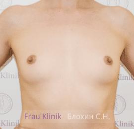 Увеличение груди 30