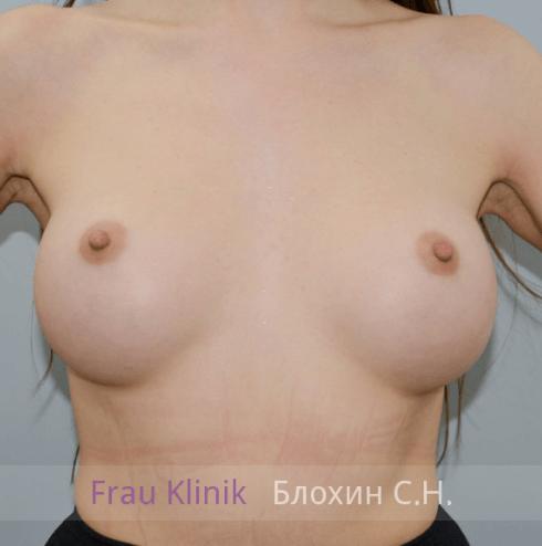 Увеличение груди 13