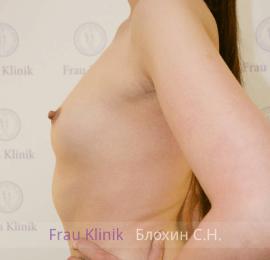 Увеличение груди 26