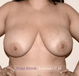 Подтяжка груди 42