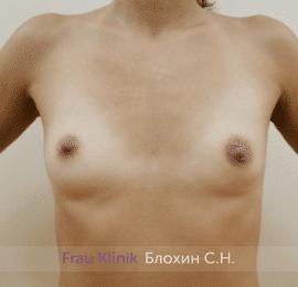 Увеличение груди 172
