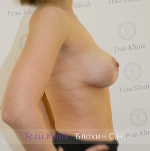 Подтяжка груди 21