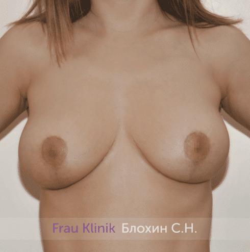 Уменьшение груди 46